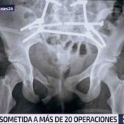 cirugia estetica o reconstructiva
