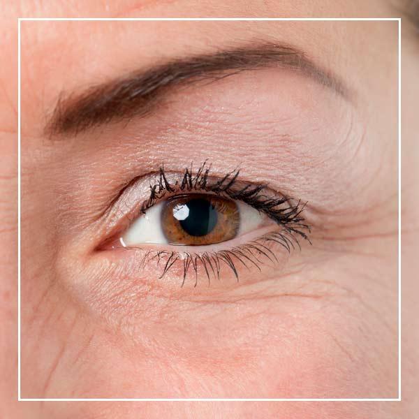 Tratamientos líneas de expresión - dermoestética Clínica La Parva