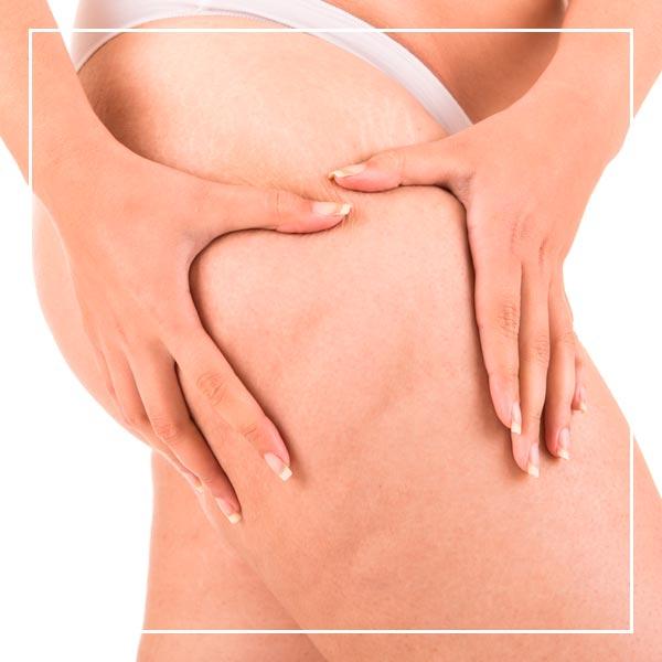 celulitis - dermoestética Clínica La Parva