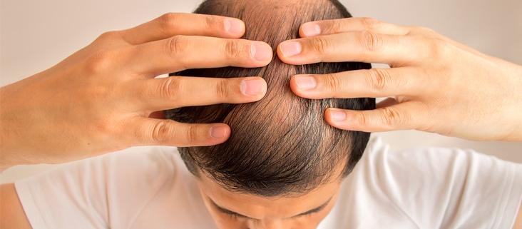 Cómo detectar la alopecia a tiempo