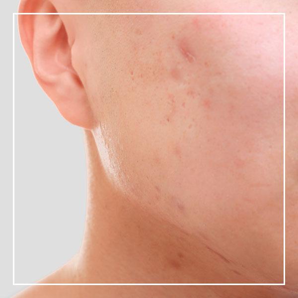 Tratamientos manchas - dermoestética Clínica La Parva