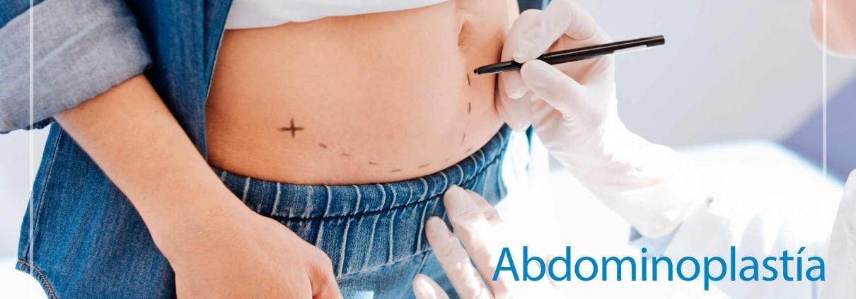 Abdominoplastia clinica la parva cirugia plastica