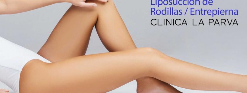 Liposuccion de rodillas y entrepierna cirugía plástica clínica la parva